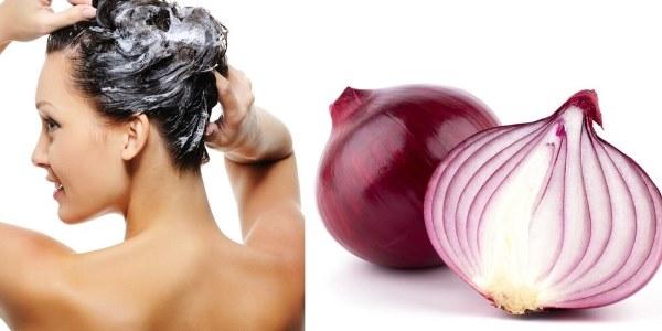 onion_prevent_hair_loss