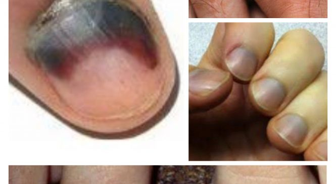 What To Do To Get Rid Of Black nails
