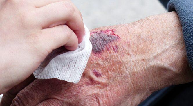 Photobiomodulation Will Soon Heal Burn Wounds